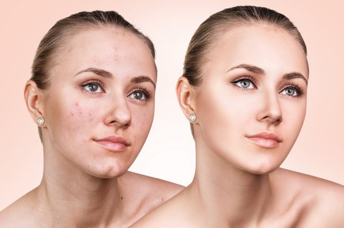 The Skin Before and after Acne Removal by the Experts