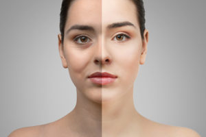 4 Things to Look for When Choosing an Eyelid Surgeon