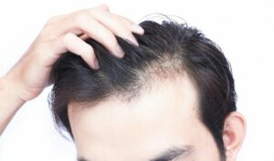 Hair Loss: How Hair Transplant Can Help?