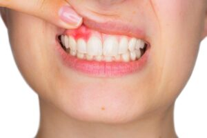 7 Common Causes of Bleeding Gums You Should be Aware of