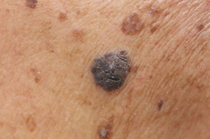 Types of Moles that Increase Risk of Melanoma