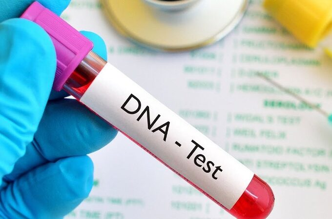 Questions To Ask When Taking A DNA Testing At Home