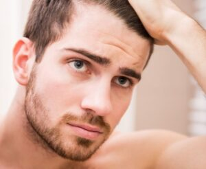 Why Do Men Lose Their Hair?